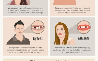 A Quick Guide to Cosmetic Dentistry