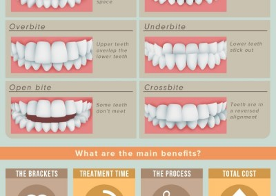 Melbourneseoservices.com Infographics - Six-Month Braces: The Modern Twist on Tried-and-True Orthodontics
