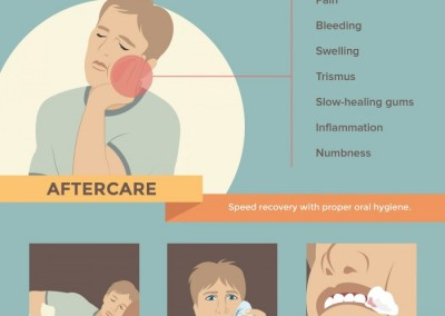 Melbourneseoservices.com Infographics - Wisdom Tooth Extraction: The Ultimate Survival Guide